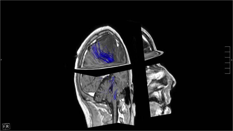 Mapping cerebral DTI-1