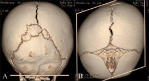 Plagiocefalia postural