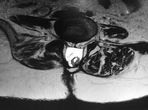 Espina bífida