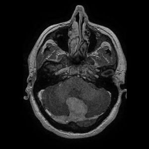 meningioma falcotentorial