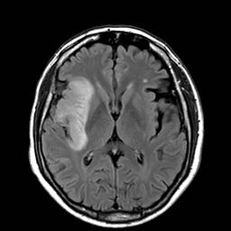 tumores gliales: astrocitoma
