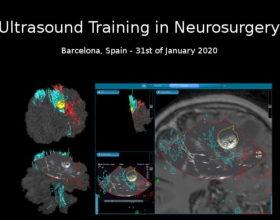 Curso de ecografía neuroquirúrgica impartido por el Dr. de Quintana