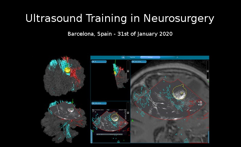 Ultrasound Training in Neurosurgery